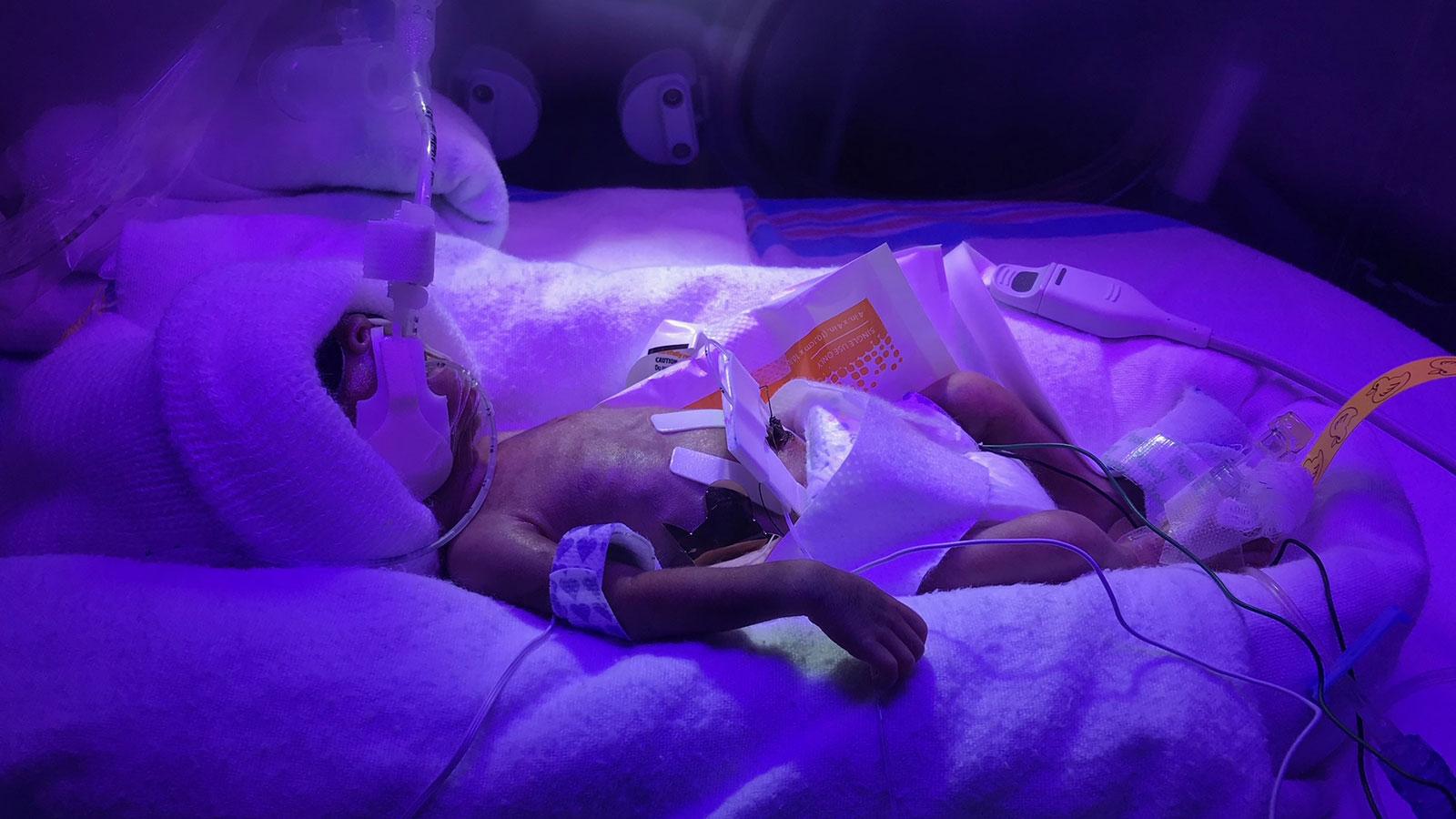 Elijah | ICU baby's Family Stories