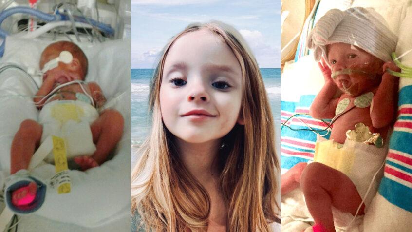 Alvarez babies | ICU baby